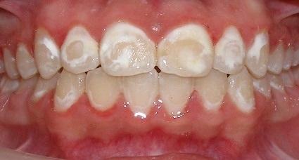 зубная эмаль беременных при недостатке кальция